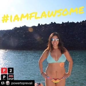 #IAmFlawsome Campaign Pic
